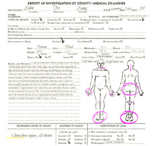 Autopsy Report Template Coroners Example Sample Uk Blank regarding Autopsy Report Template