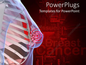 Powerpoint Template: Anatomy Of The Female Breast With A for Free Breast Cancer Powerpoint Templates