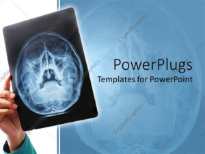 Powerpoint Template: Hand Holding Up X-Ray Scan Of Human pertaining to Radiology Powerpoint Template